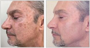 face photorejuvenation