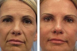 is the result of mesotherapy